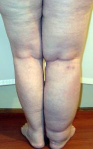 Отек ноги при онкологии