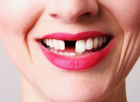 rak zuba