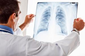 Чем и как лечить рак легких?