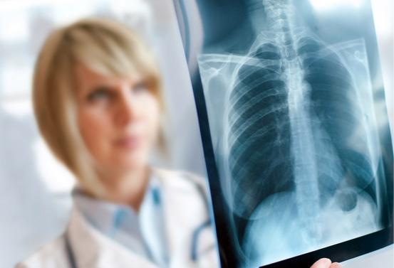 Как лечить рак легких?