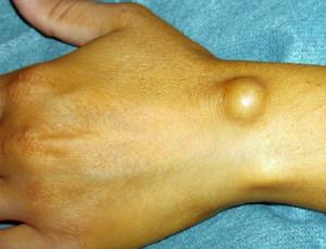 Опухоль на руке