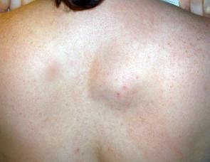 Опухоль спины