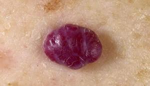 Опухоль вены