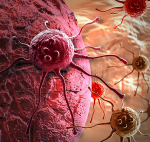 Заразен ли рак для окружающих?