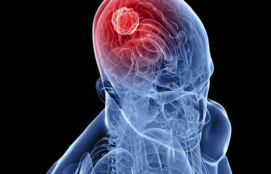Что вызывает рак мозга?