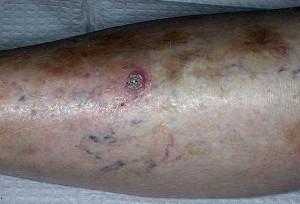 Плоскоклеточный рак кожи на ногах