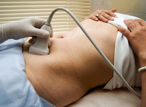 Рак яичников после родов (беременности)