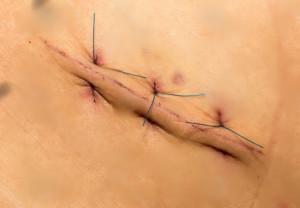 Биопсия - последствия (рана и шов)