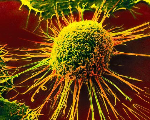 Как остановить рост опухоли?