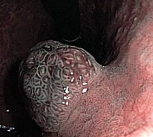 Карциноид желудка