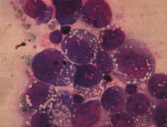 Крупноклеточная лимфома - как выглядит