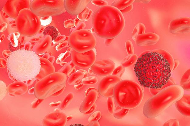 Лейкоз - прогноз, выживаемость