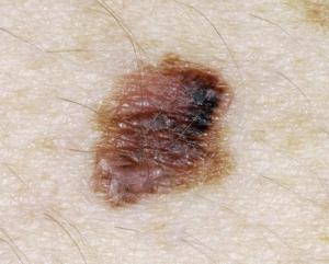 Меланома - фото начальная стадия.