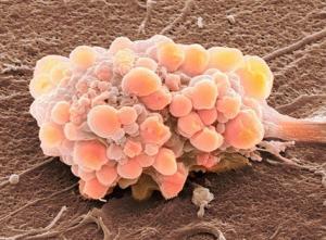 Развитие рака: как и с чего начинается развитие онкологии?