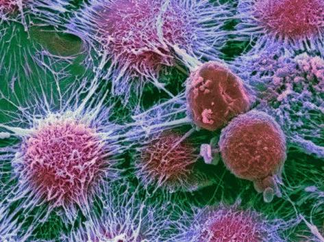 Рост опухолей. Как остановить рост опухоли?