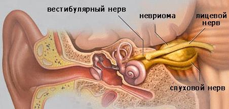 Удаление невриномы