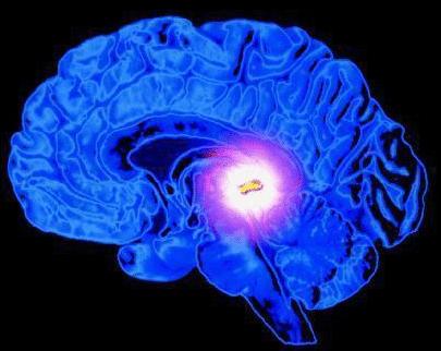 Лимфома мозга