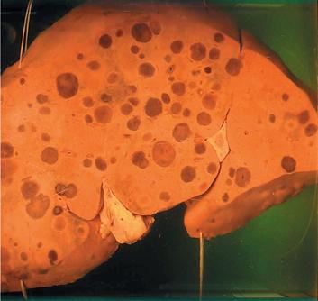 Метастазы в печени - прогноз срока жизни