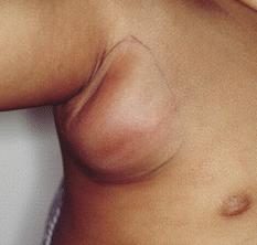 Опухоль лимфоузлов - фото