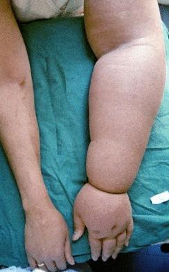 Рука после мастэктомии: устранение осложнений