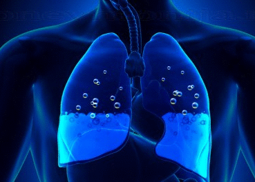 Жидкость в легких: лечение при раке
