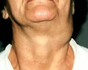 Хемодектома