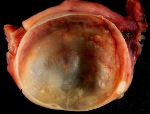 Кистозно-опухолевое поражение яичника