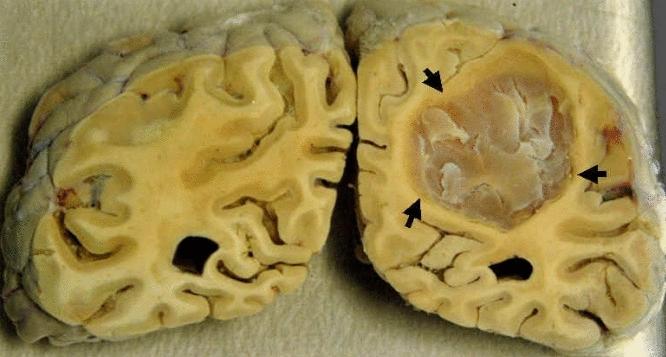 Первые признаки опухоли мозга у взрослых