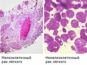 Рак легких - фото