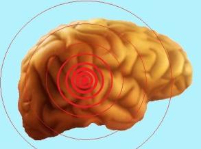 Рак головного мозга симптомы на ранних стадиях