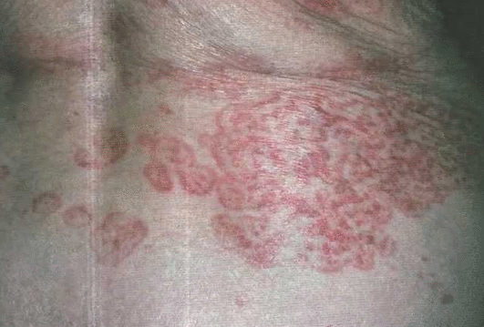 Рак молочных желез: симптомы, фото