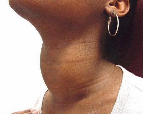Симптомы рака щитовидной железы у женщин