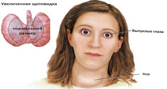 Рак щитовидной железы: симптомы у женщин
