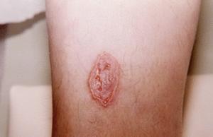 Бляшки на коже как признак рака