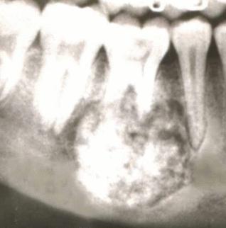 Опухоль зуба