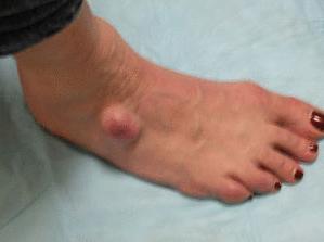 Липома на ноге фото