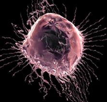 уничтожение опухолевых клеток