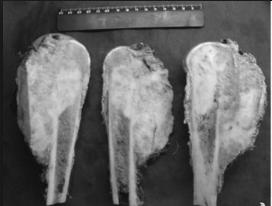 опухоли костной ткани