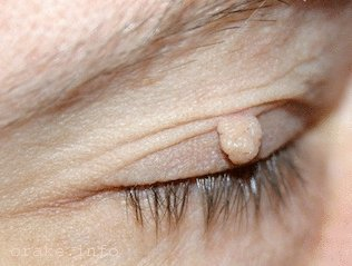 папилллома на глазу