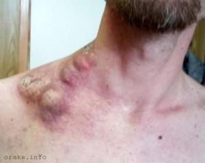 меланома - метастазы в лимфоузлы