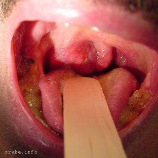 метастазы в горле
