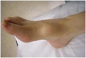 саркома ноги