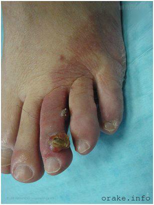 саркома пальца ноги