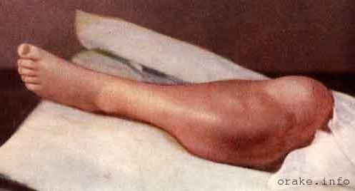 синовиальная саркома