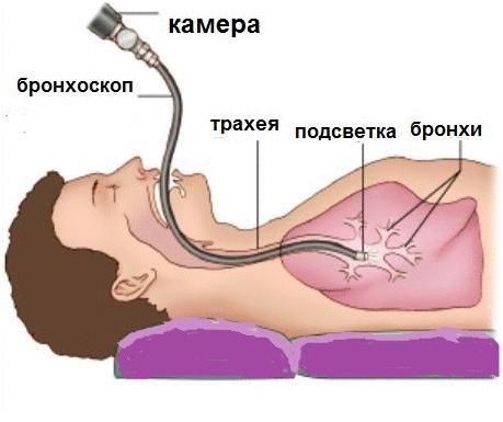как делают бронхоскопию