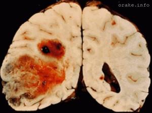 neoperabelnaya opuxol mozga