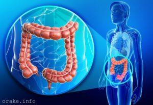 adenokarcinoma tolstoj kishki