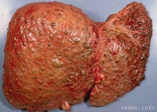 cirroz pecheni mozhet perejti v rak