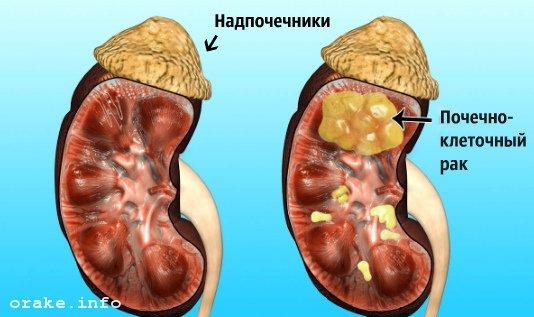 pochechno-kletochnyj rak