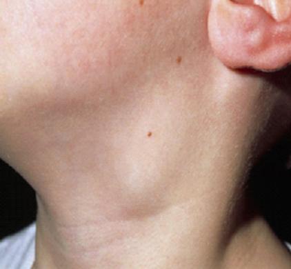 limfogranulematoz